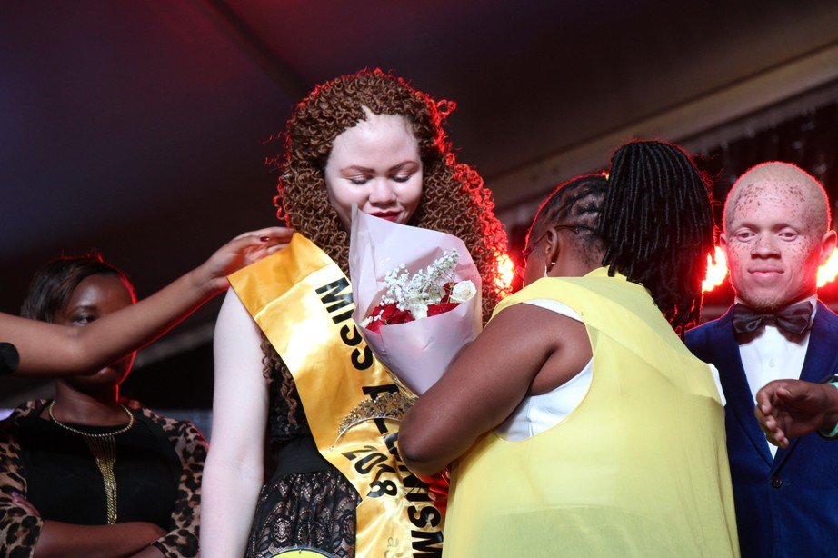 Crowning of Miss Albinism Uganda