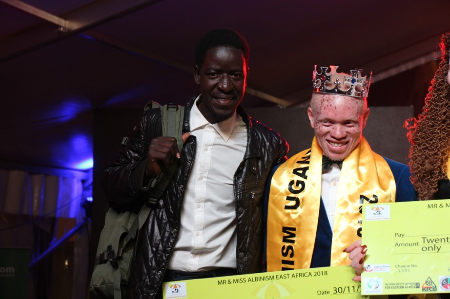 Pat and Paul pose for a picture after Paul was named Mr Albinism Uganda