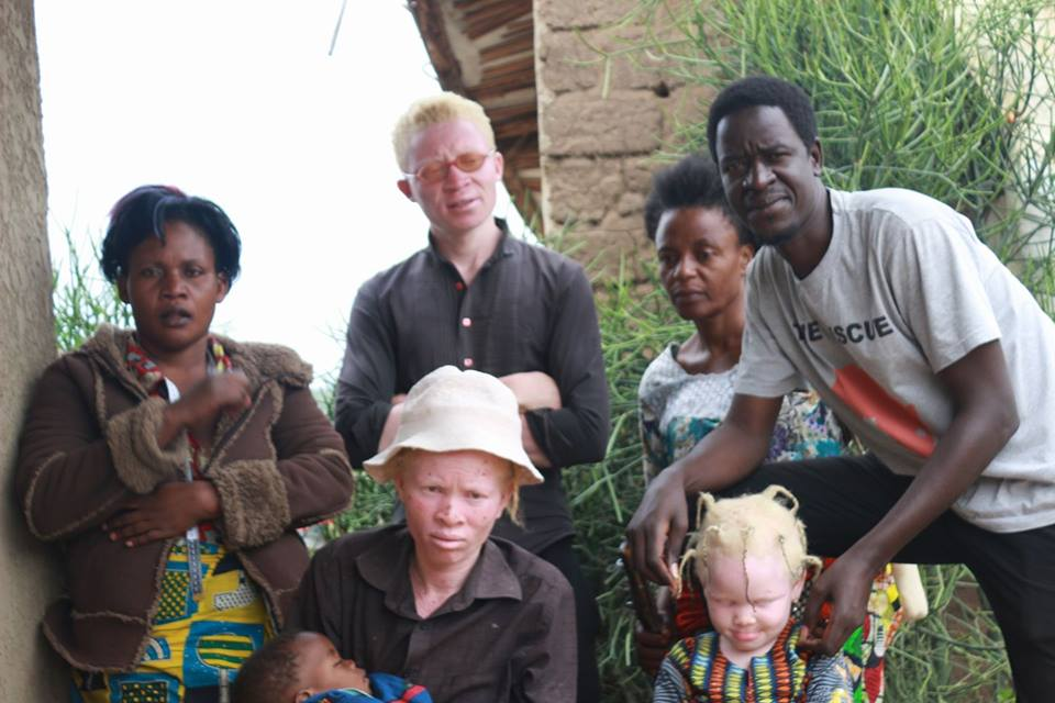 Rescue Mission meeting mothers and youth with albinism at Nakivale Refugee settlement camp in western Uganda